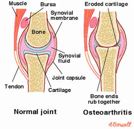 Synapsis of osteoarthritis muscle atrophy and