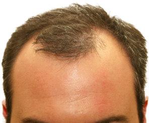 frontal hair loss minoxidil propecia