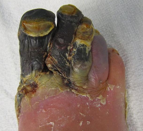 toes diseases #9