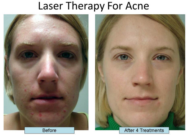 Tetracycline For Acne Reviews