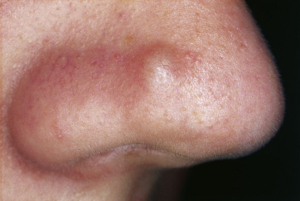 Treating Acne with Laser Therapy: - 56.5KB