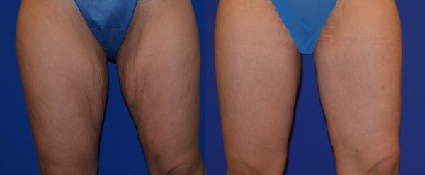 Thighplasty: Is a Leg Lift Procedure Right for You?